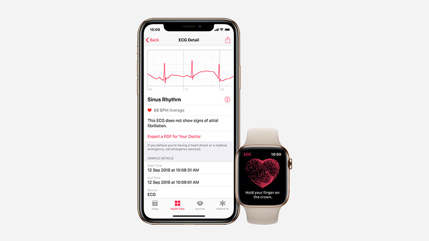 Apple Watch Series 5 ECG electrical heart rate sensor