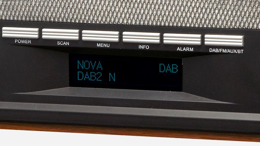 Bedieningsknoppen radio