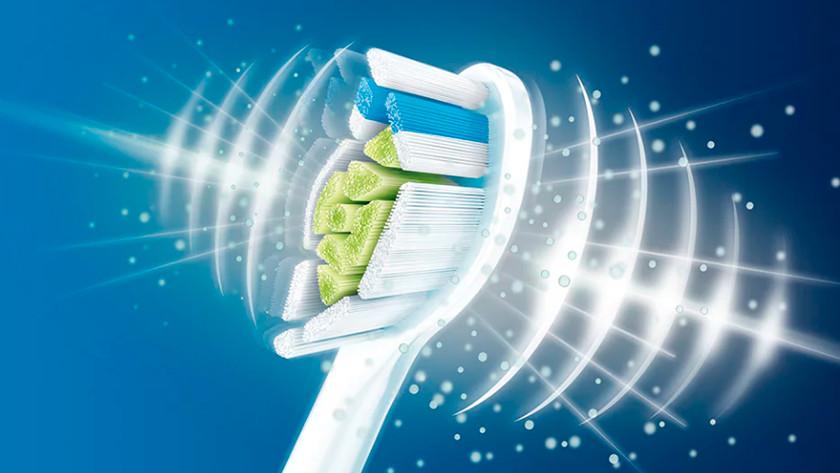 Sonische poetstechniek tandenborstels